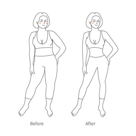 liposuction: Concept of diet. Woman before and after a diet. Flat design, vector illustration.
