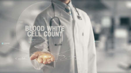 Doctor holding in hand Blood White Cell Count Stock Photo