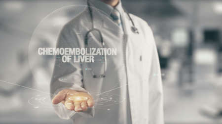Doctor holding in hand Chemoembolization of Liver Stock Photo