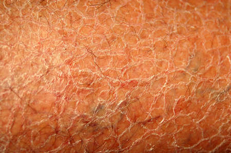 The dry itchy human white skin of a caucasian unhealthy senior man's leg