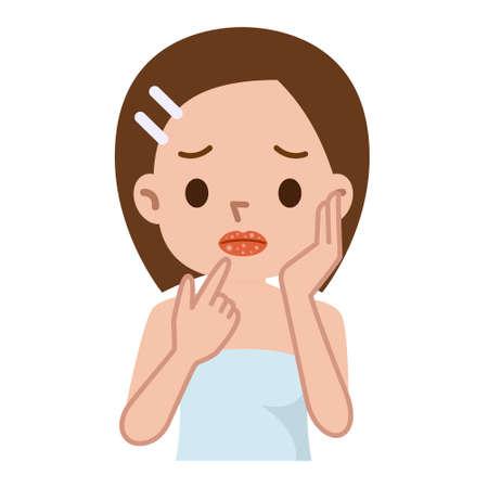 ragazza malata: labbra del primo piano con l'herpes raffreddore, mal sul labbro