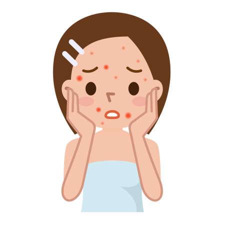 problema ragazza brutta pelle