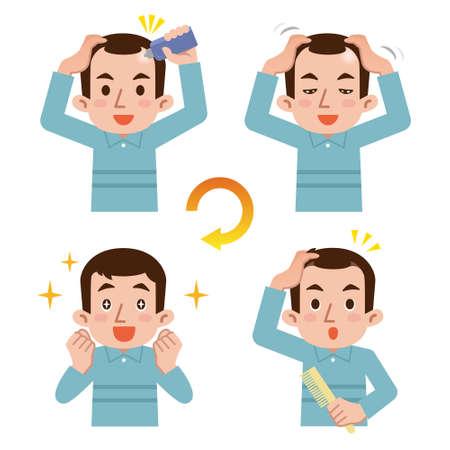 Cycle de croissance des cheveux chez l'homme
