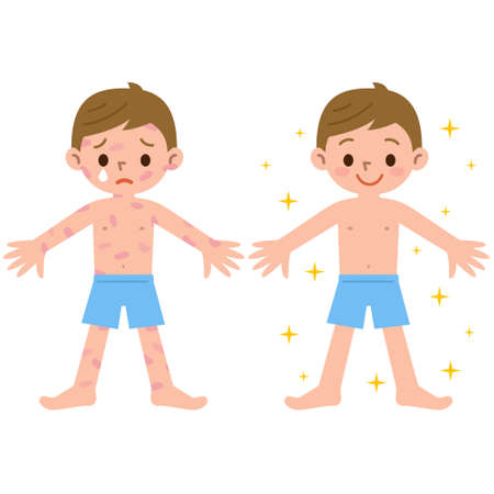 lesions: Boy with and without dermatitis Illustration