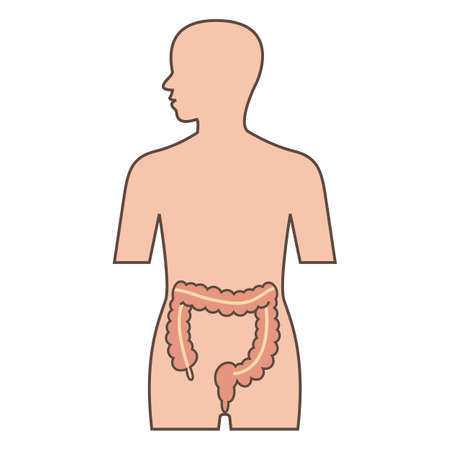 inflamed: Illustration of large intestine