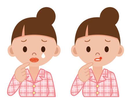 Disease of the lips Vektorové ilustrace