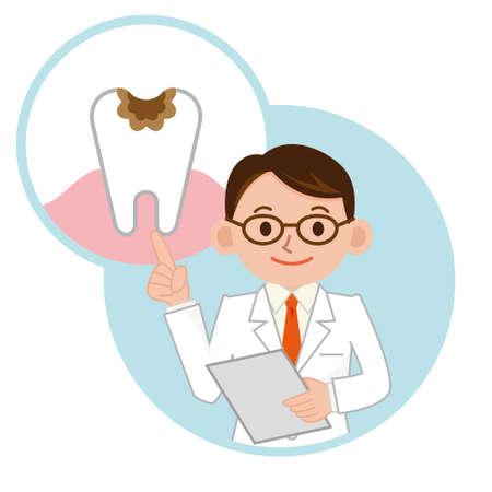 caries dental: Physician a la descripción de la caries dental