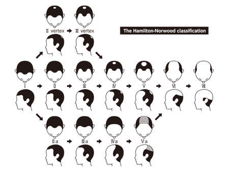 Information chart of hair loss stages and types of baldness illustrated on a male head. 일러스트