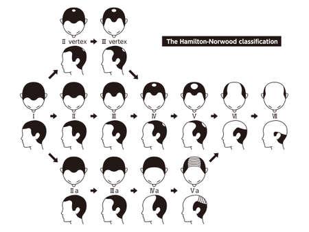Tableau d'information sur les stades de perte de cheveux et les types de calvitie illustrés sur une tête masculine. Vecteurs