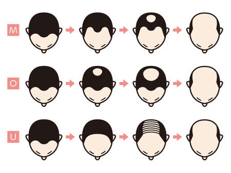 Information chart of hair loss stages and types of baldness illustrated on a male head. Vector Illustration