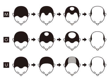 Informationsdiagramm der Stadien des Haarausfalls und der Arten von Kahlheit, dargestellt auf einem männlichen Kopf.