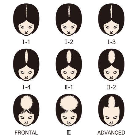 Haarausfall-Set mit weiblichem Muster. Stadien der Kahlheit bei Frauen.
