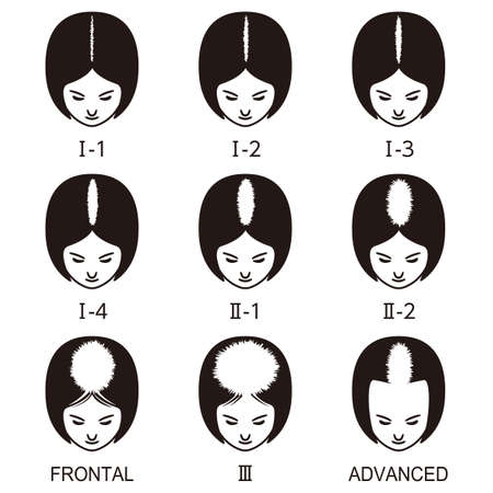 Female pattern hair loss set. Stages of baldness in women.