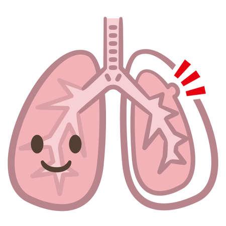 symptoms of pneumothorax lung vector Ilustrace