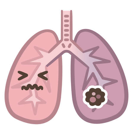 Normal lung and lung cancer illustration Ilustrace