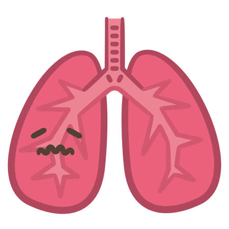 Illustration of lungs reddened by inflammation