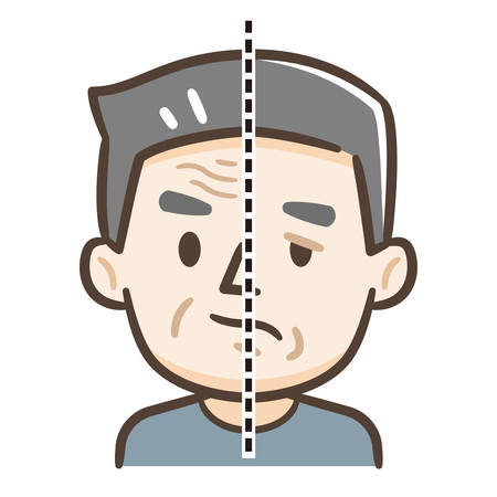 Senior citizen of facial nerve palsy Vector Illustration