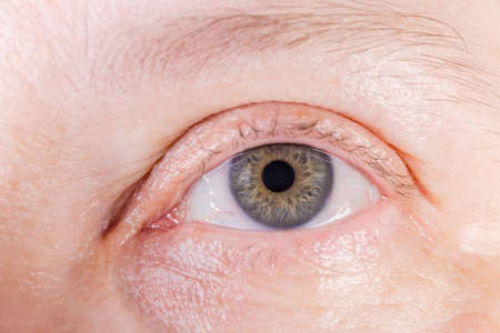 Open left human eye with gray iris with small amounts of yellow color and some blood vessels on sclera close-up