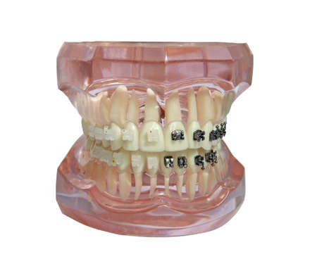 Isolated jaw model with metal and plastic braces on teeth on white background. Tooth roots visible through transparent material.