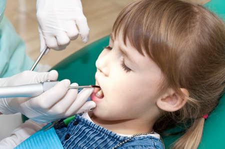 dental prophylaxis: dentist treats teeth of a little girl. caries prevention Stock Photo