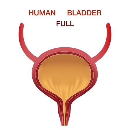 Full Urinary bladder. Human organ anatomy. Editable vector illustration in realistic style isolated on white background. Medical, healthcare and scientific concept. Educational infographic. Healthcare.Human internal organs symbol.