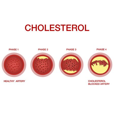 Atherosclerosis stages.The accumulation of cholesterol in the blood vessels. Atherosclerosis. Illustration isolated on white background.Atherosclerosis of blood vessels. Cholesterol in the arteries. Disturbance of lipid and protein metabolism, adjournment the cholesterol plaques in arteries.Medical concept