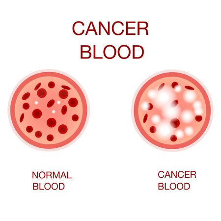 Infographic image of leukemia. Leukaemia disease awareness.Leukemia Blood Cells And Normal Blood Cells White Blood Cells  Monocyte . Realistic vector picture .Medical and  healthcare concept