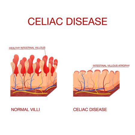 Coeliac disease or celiac disease.Healthy and damaged villi