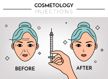 Cosmetic injections. Infographics before and after. Vector flat illustration with place for text. Mesotherapy, rejuvenation.