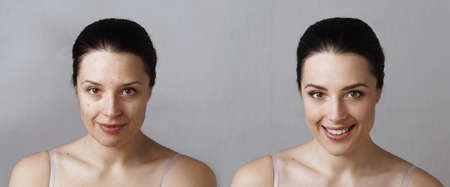 Comparison photo of woman with smiling face before and after treatment and makeup on light grey background. Real unretouched blemishes.