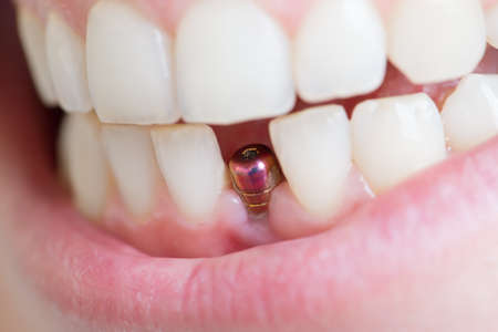 dental: single tooth implant