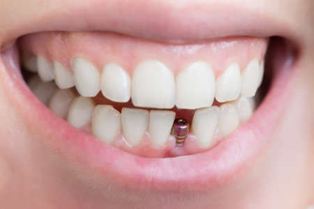 dental care: single tooth implant