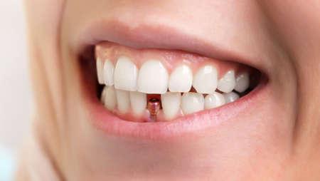 Zahnarzt Werkzeuge. Schönes Lächeln der jungen Frau mit Nahaufnahme des Zahnimplantats für Gesundheitsdesign. Gesunde Zähne. Kieferorthopädische Behandlung. Zahnpflege.