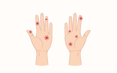 Virus on humans hands. Vector flat style illustration isolated on white background  イラスト・ベクター素材