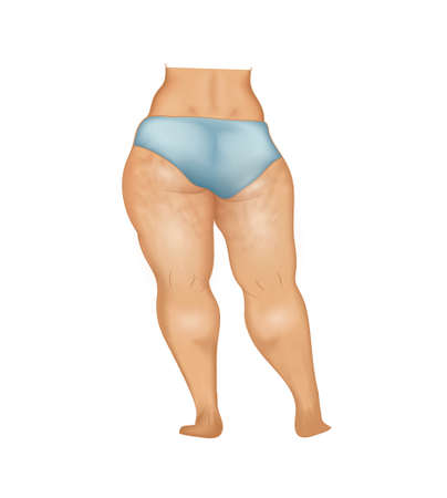 Womans buttocks and legs with cellulite Illustration
