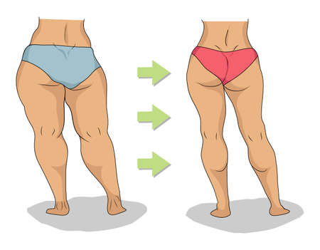 Butt and legs of thick woman