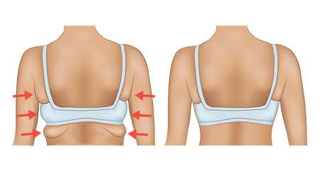 Aisselles grasses d'une femme avec désignation de flèche. Aisselles graisseuses avant et après un régime ou une chirurgie Vecteurs