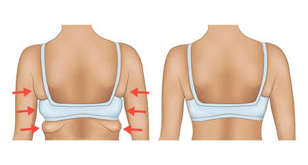 Armpits fat of a woman with arrow designation. Armpits fat before and after diet or surgery