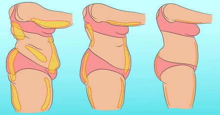 Woman body with designation of cellulite or fat Vetores