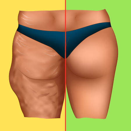 Cellulite on woman buttocks before and after sport, medical or cosmetic procedure  イラスト・ベクター素材