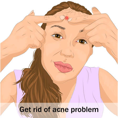 Illustration of acne problem on woman face