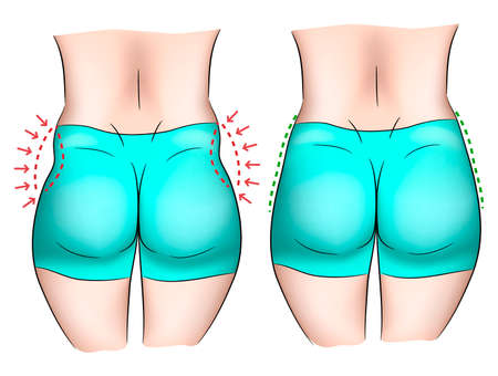 Comparison of love handles on a woman body