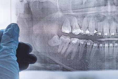 X-ray photograph of human teeth with a braces system. Retarded wisdom tooth 免版税图像