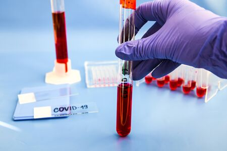 Coronavirus Blood Sample, DNA testing of the blood in the laboratory and blood sample collection tubes and syringe with DNA modern interface blue background, covid-19 virus Banque d'images