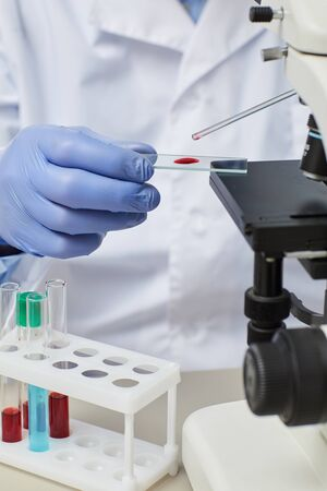 Nahaufnahme des Arztes in Handschuhen mit Pipette und Arbeiten mit Blutproben mit Mikroskop