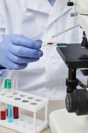 Primer plano del médico en guantes con pipeta y trabajando con muestras de sangre con microscopio