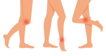 ankles sexy: Pain in legs. Vector isolated illustration. Flat. White background Feet