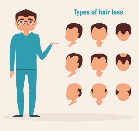 Los tipos de pérdida de cabello. frente, de perfil, los mejores tipos. Ilustración del vector. personaje de dibujos animados aislado