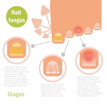 infezione del fungo chiodo. Vettore. Cartoon isolata Flat