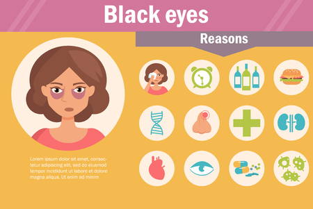 Black eyes. Reasons. Vector. Cartoon. Isolated Flat Illustration for websites brochures magazines